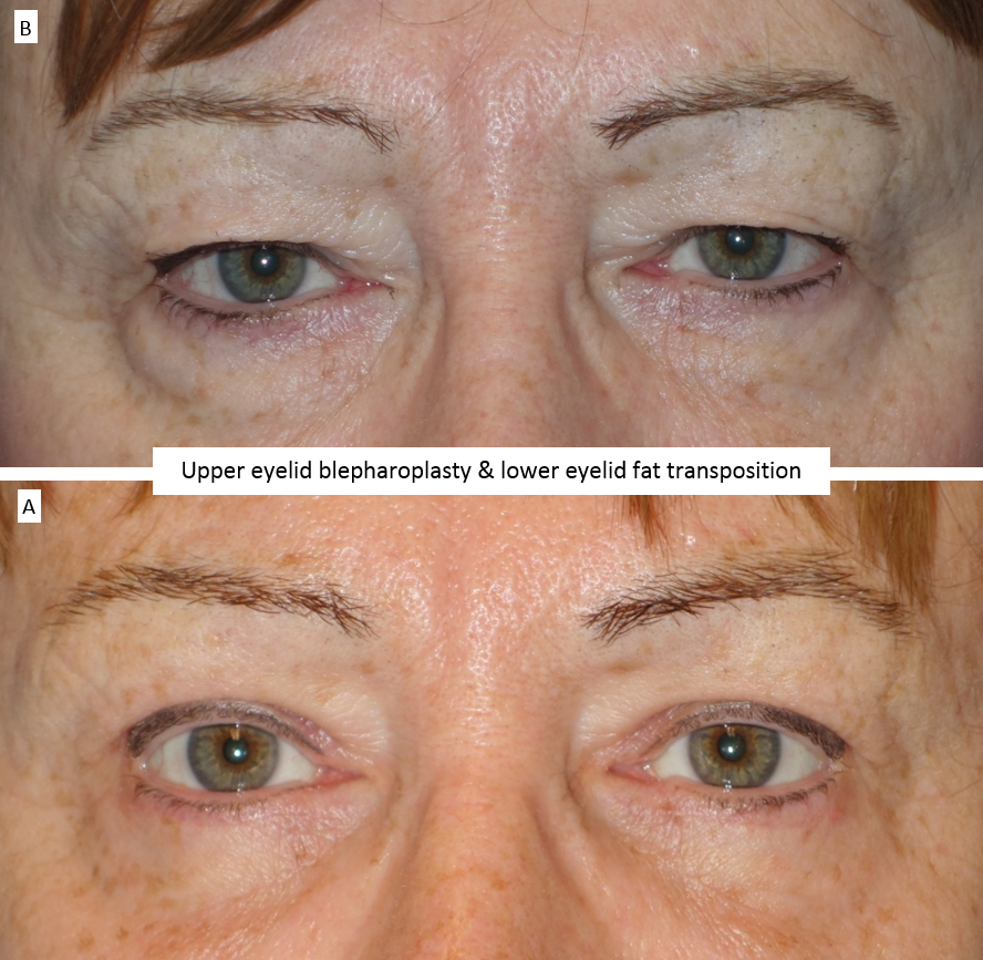 Upper eyelid blepharoplasty & lower eyelid fat transposition