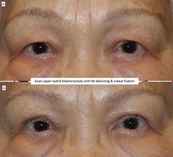 Asian upper eyelid blepharoplasty with fat debulking & crease fixation
