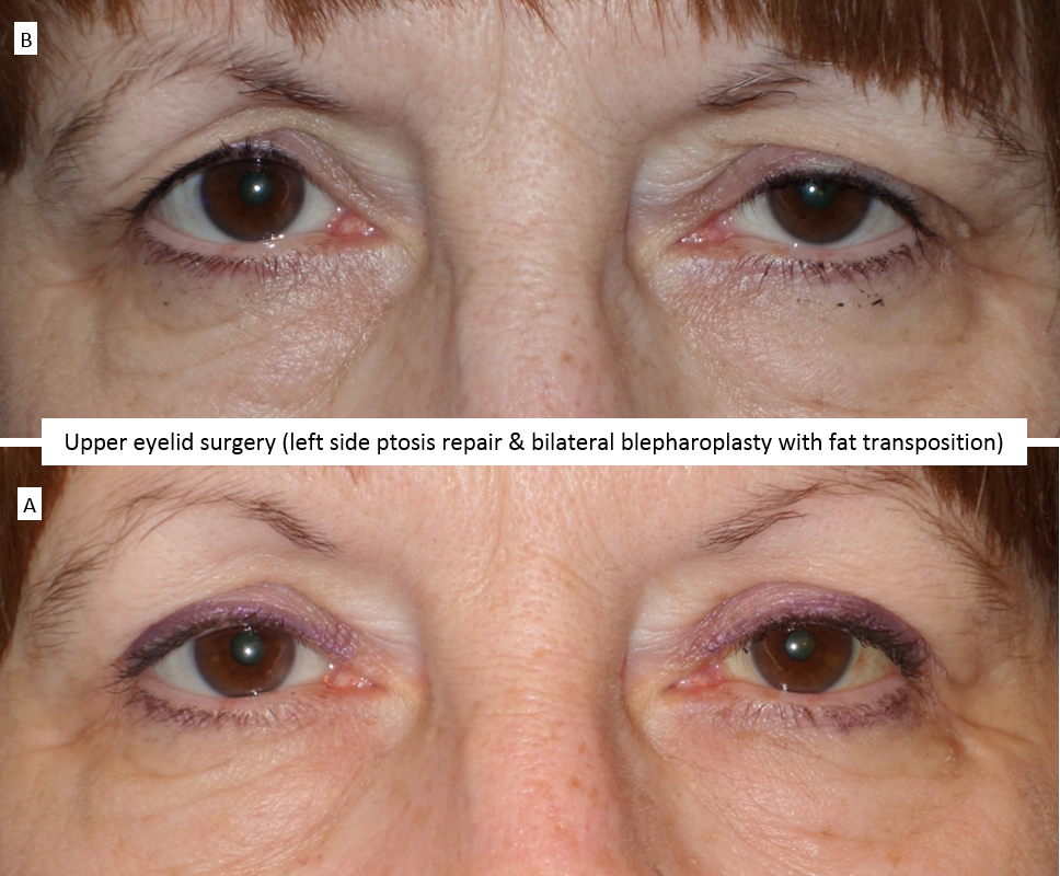 Upper eyelid surgery (left side ptosis repair & bilateral blepharoplasty with fat transposition)
