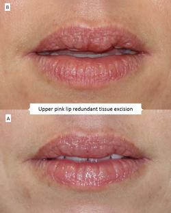 Upper pink lip redundant tissue excision