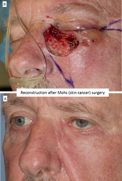 Reconstruction after Mohs (skin cancer) surgery