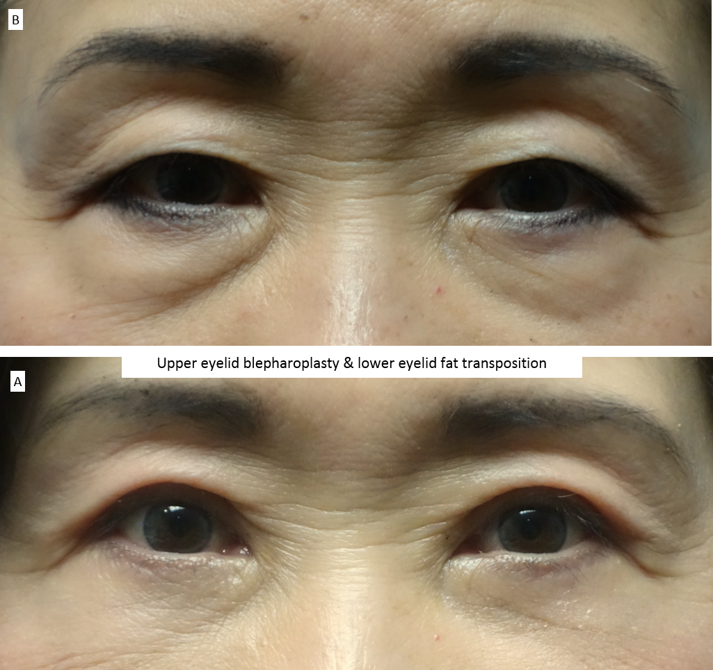 Upper eyelid blepharoplasty & lower eyelid fat transposition 2