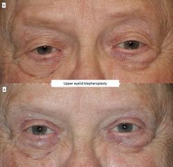 Upper eyelid blepharoplasty 2