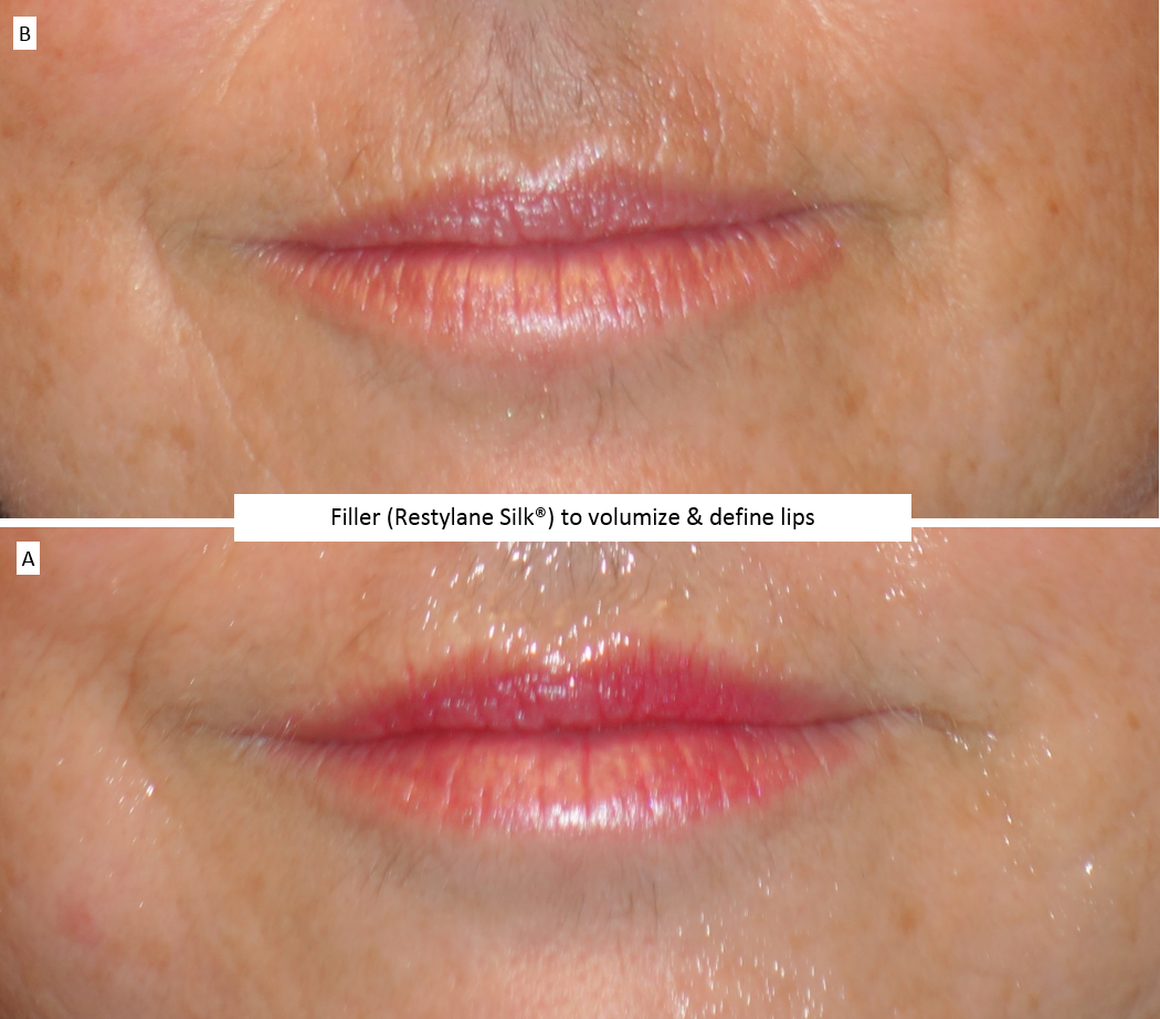 Filler_(Restylane_Silk®)_to_volumize_&_define_lips