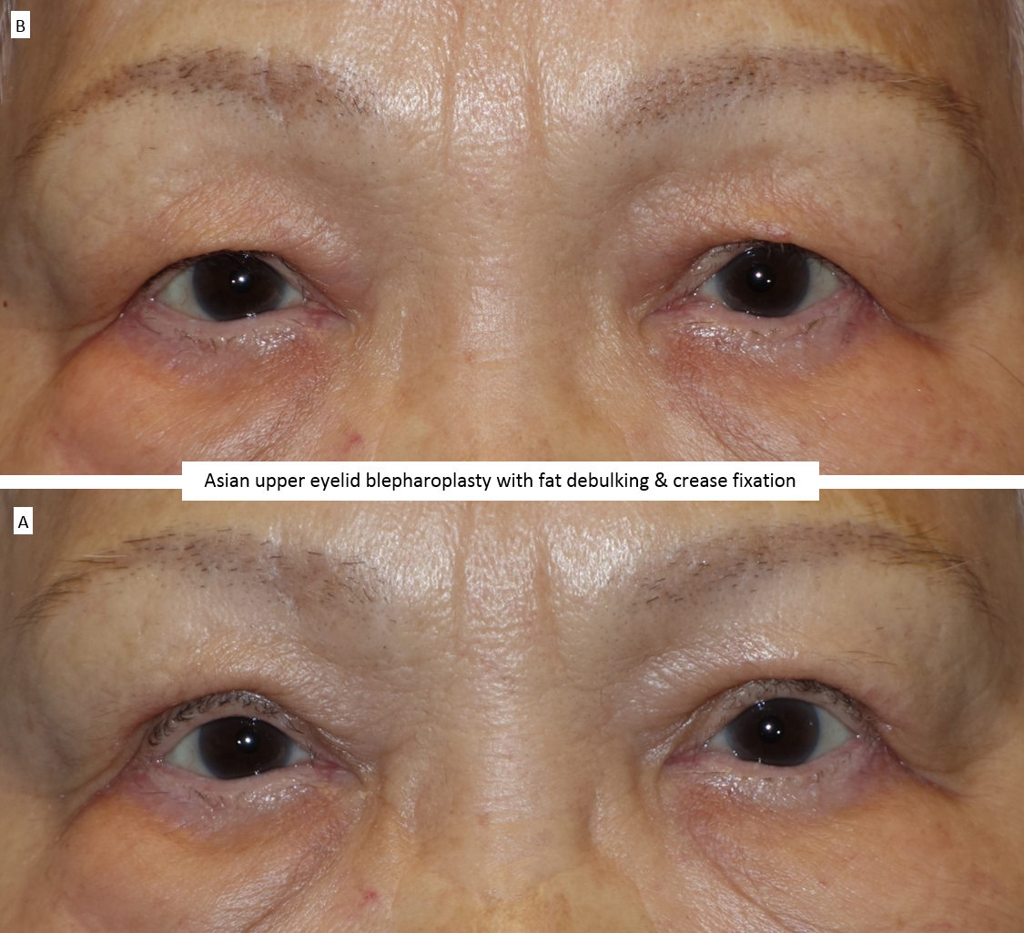 Asian upper eyelid blepharoplasty with fat debulking & crease fixation