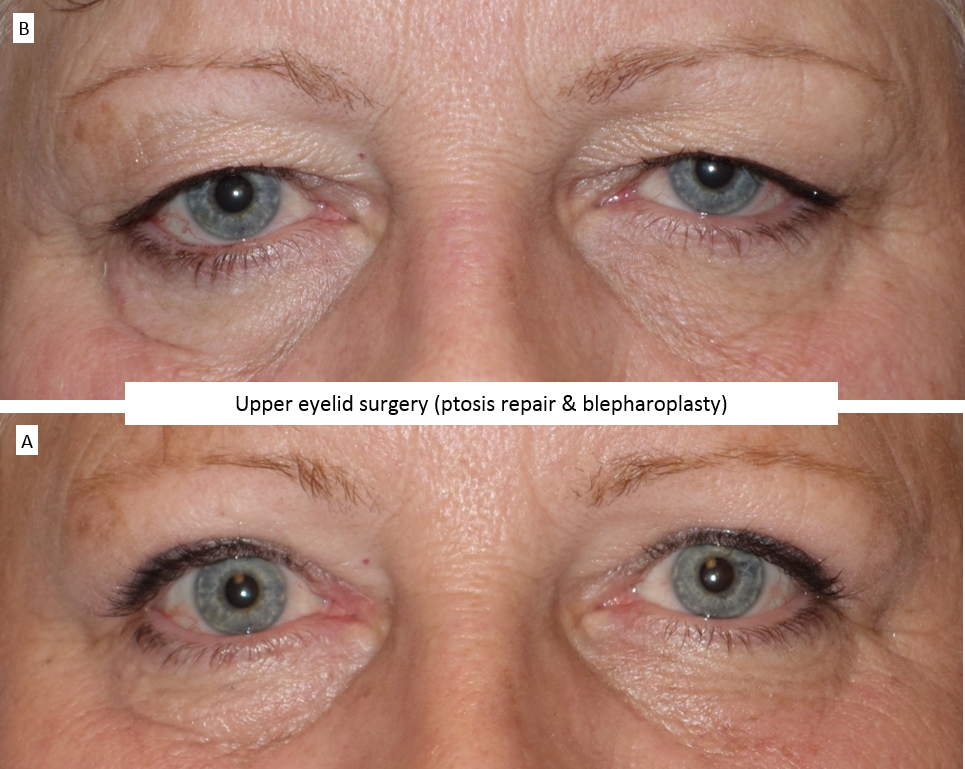 Upper eyelid surgery (ptosis repair & blepharoplasty) 3