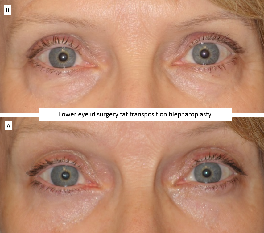 Lower eyelid surgery fat transposition blepharoplasty 2