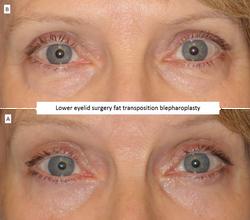 Lower eyelid surgery fat transposition blepharoplasty 2