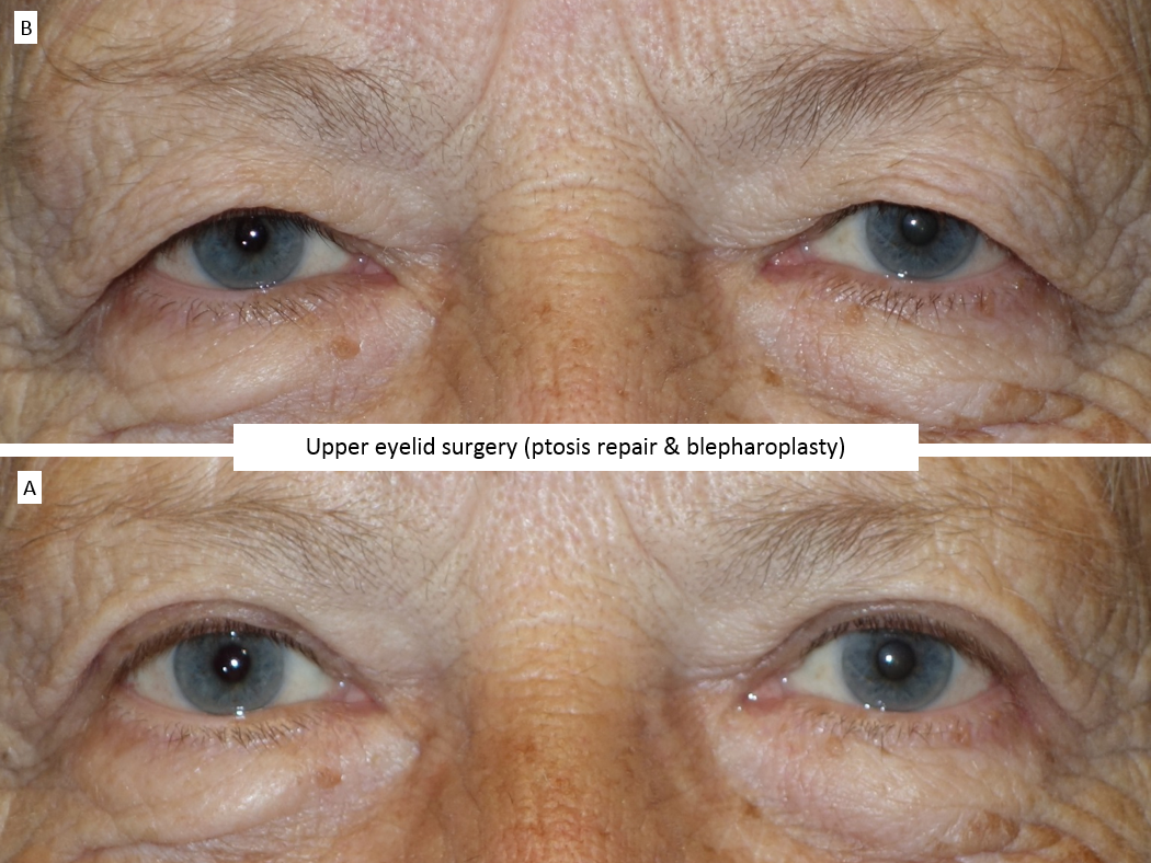 Upper eyelid surgery (ptosis repair & blepharoplasty) 6