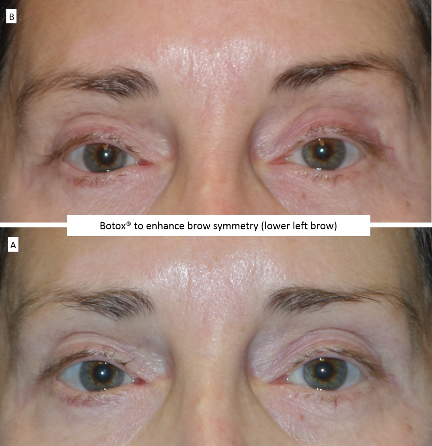Botox®_to_enhance_brow_symmetry_(lower_left_brow)