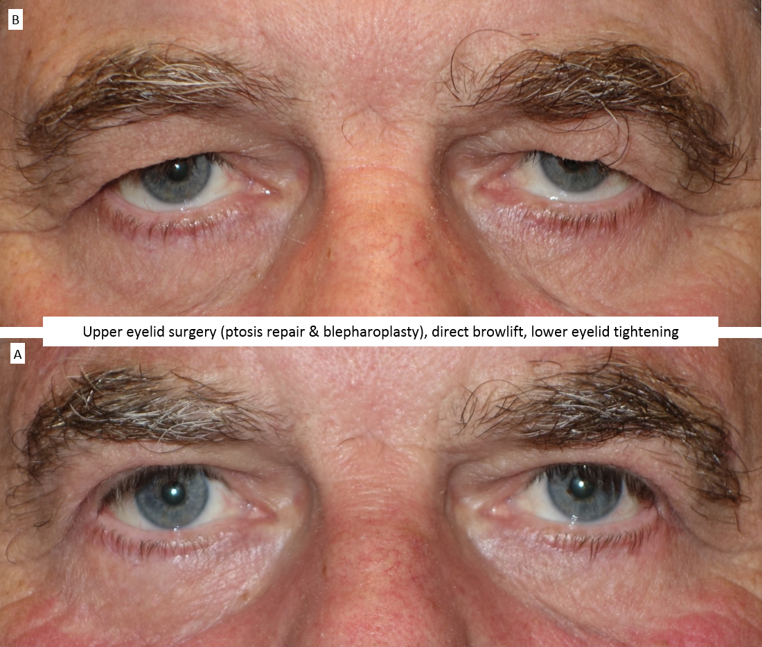 Upper eyelid surgery (ptosis repair & blepharoplasty), direct browlift, lower eyelid tightening