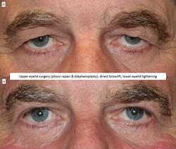 Upper eyelid surgery (ptosis repair & blepharoplasty), direct browlift, lower eyelid tightening