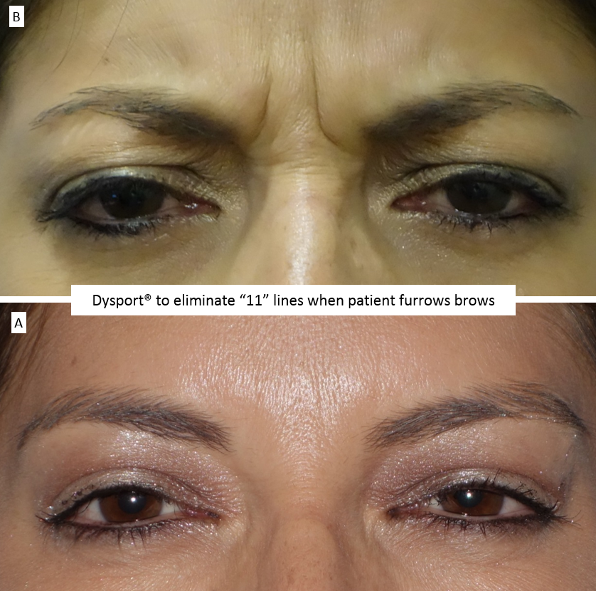 "Dysport®_to_eliminate_""11""_lines_when_patient_furrows_brows"