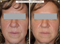 Abdominal fat to temporal, cheek, lower face hollows