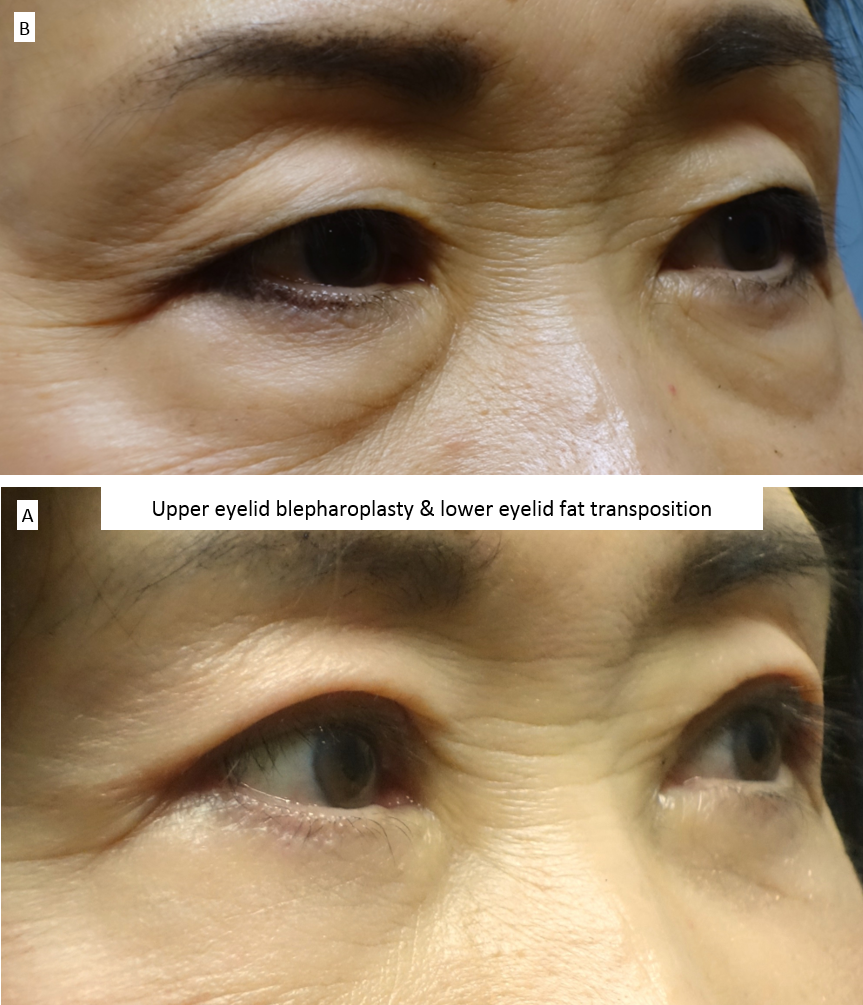 Upper eyelid blepharoplasty & lower eyelid fat transposition 3
