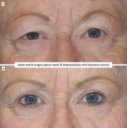 Upper eyelid surgery (ptosis repair & blepharoplasty with brassiere sutures)