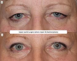 Upper eyelid surgery (ptosis repair & blepharoplasty) 3
