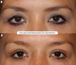 Asian upper eyelid blepharoplasty with crease definition