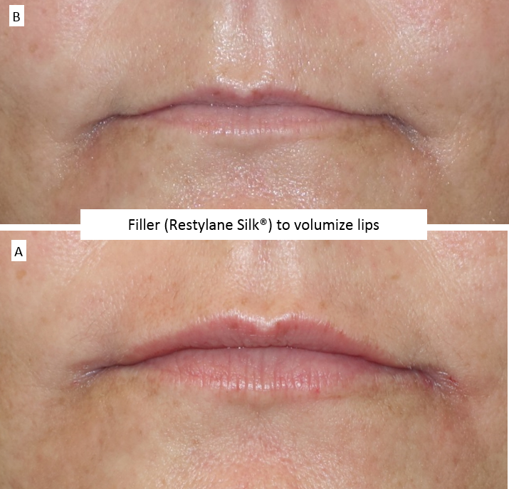 Filler_(Restylane_Silk®)_to_volumize_lips