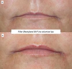 Filler_(Restylane_Silk®)_to_volumize_lips