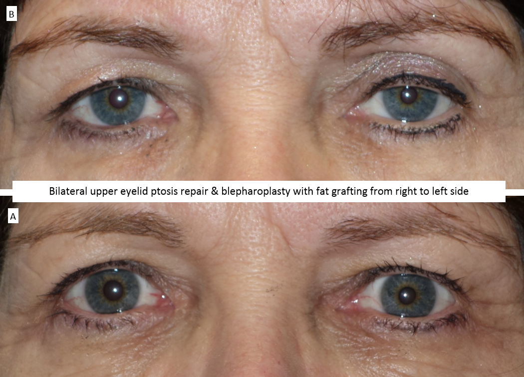 Bilateral upper eyelid ptosis repair & blepharoplasty with fat grafting from right to left side