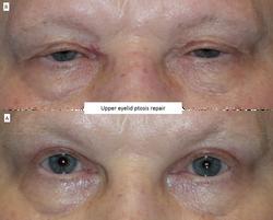 Upper eyelid ptosis repair 2