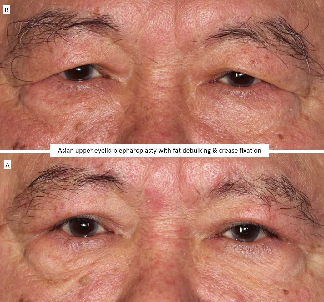 Asian upper eyelid blepharoplasty with fat debulking & crease fixation 2
