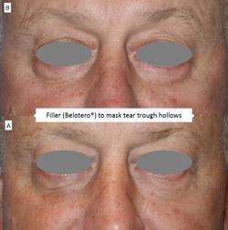 Filler_(Belotero®)_to_mask_tear_trough_hollows