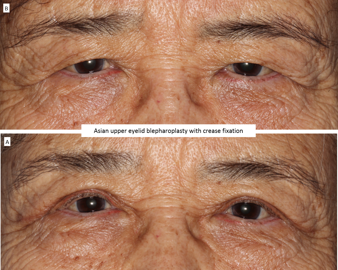 Asian upper eyelid blepharoplasty with crease fixation