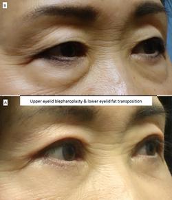 Upper eyelid blepharoplasty & lower eyelid fat transposition 3