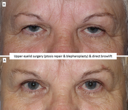 Bleph, mullerectomy ptosis surgery, direct browlift