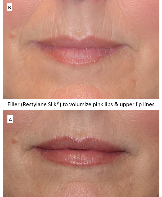 Filler_(Restylane_Silk®)_to_volumize_pink_lips_&_upper_lip_lines