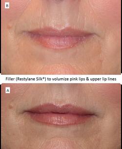 Filler_(Restylane_Silk®)_to_volumize_pink_lips_&_upper_lip_lines