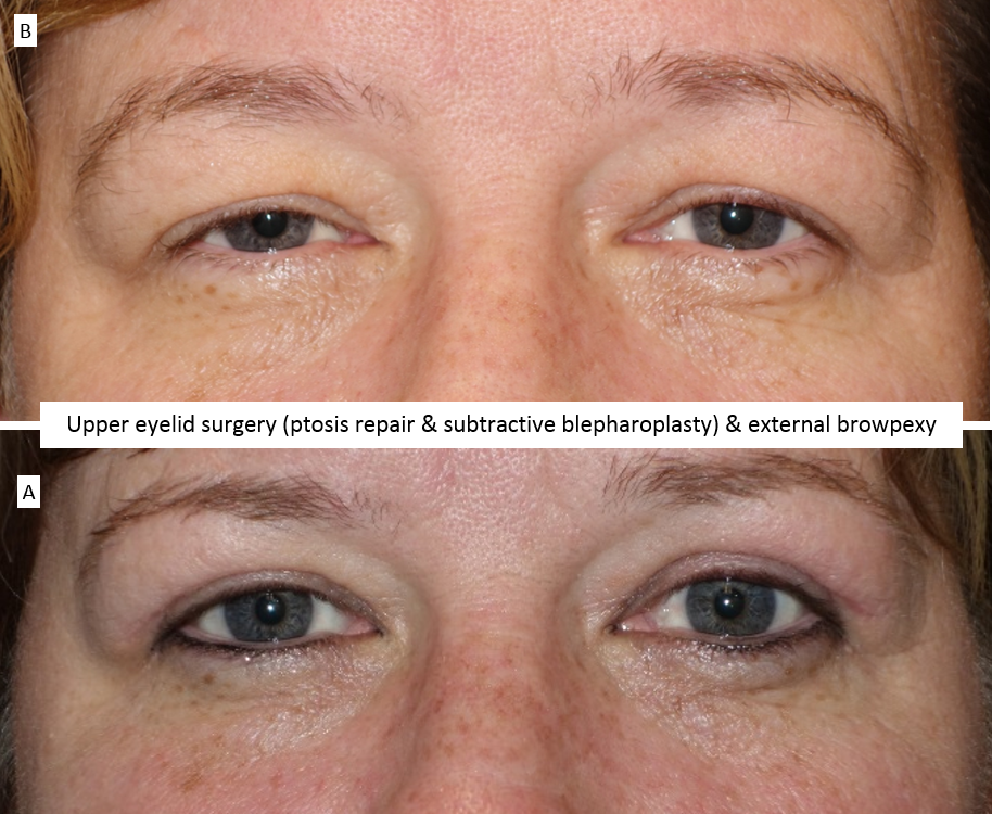 Upper eyelid surgery (ptosis repair & subtractive blepharoplasty) & external browpexy
