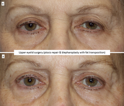 Upper eyelid surgery (ptosis repair & blepharoplasty with fat transposition)