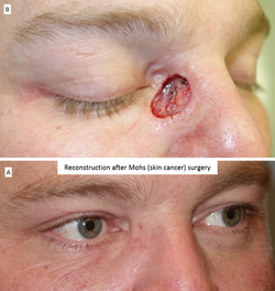 Reconstruction after Mohs (skin cancer) surgery 3
