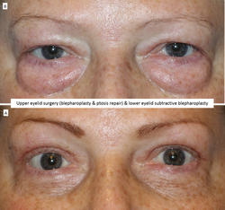 Upper eyelid surgery (blepharoplasty & ptosis repair) & lower eyelid subtractive blepharoplasty