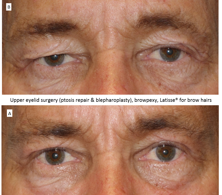 Upper_eyelid_surgery_(ptosis_repair_&_blepharoplasty),_browpexy,_Latisse®_for_brow_hairs