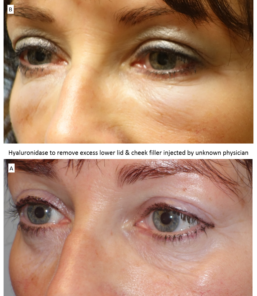 Hyaluronidase to remove excess lower lid & cheek filler injected by unknown physician 3