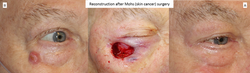Reconstruction after Mohs (skin cancer) surgery 2