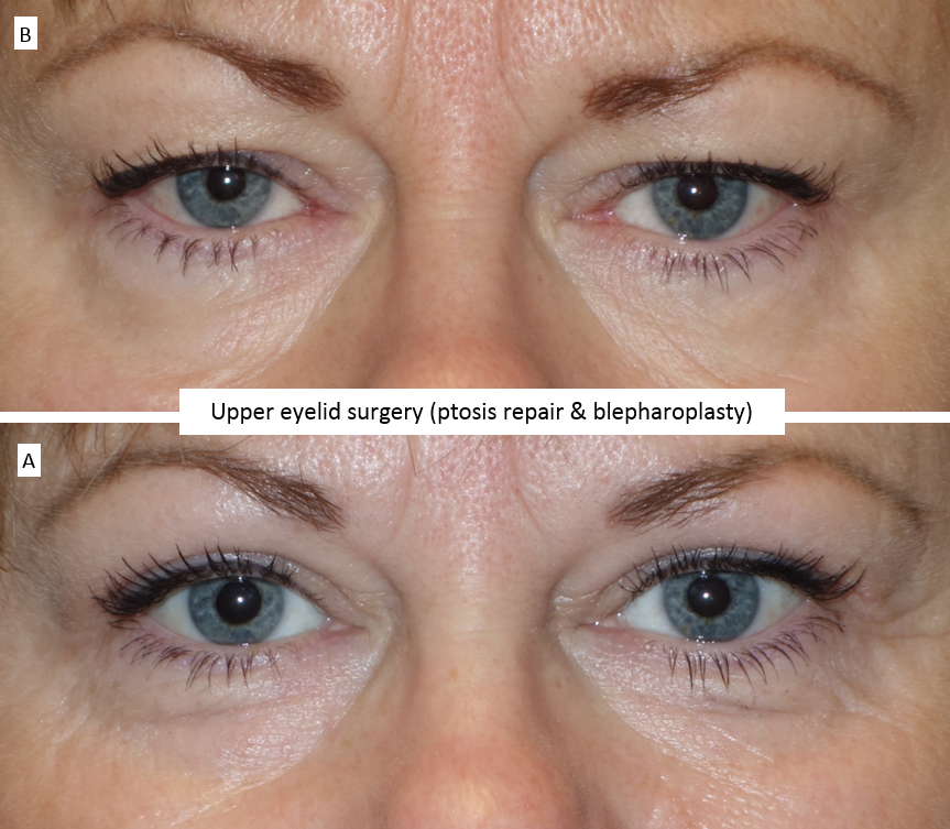Upper eyelid surgery (ptosis repair & blepharoplasty)