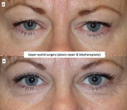 Upper eyelid surgery (ptosis repair & blepharoplasty)