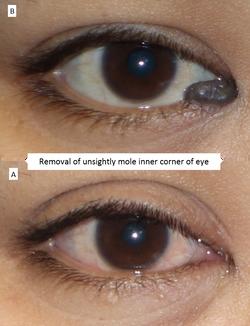 Removal of unsightly mole inner corner of eye