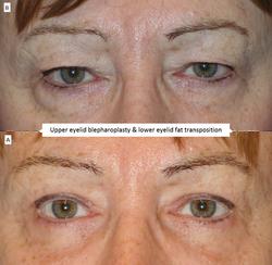 Upper eyelid blepharoplasty & lower eyelid fat transposition