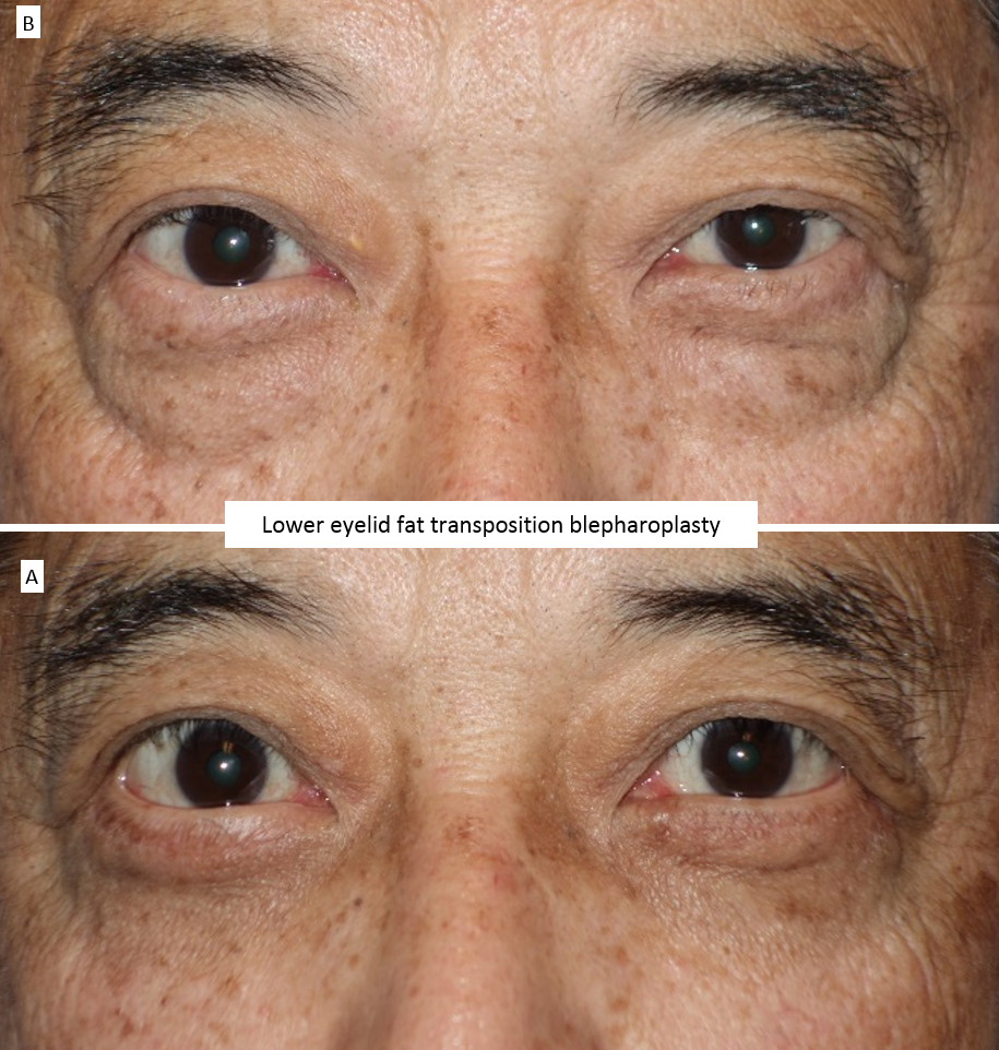 Lower eyelid fat transposition blepharoplasty