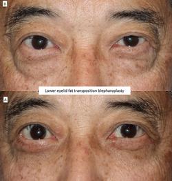 Lower eyelid fat transposition blepharoplasty