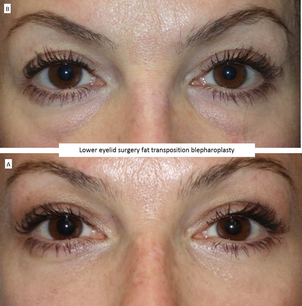 Lower eyelid surgery fat transposition blepharoplasty