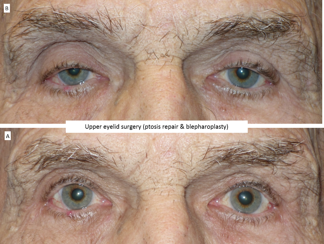 Upper eyelid surgery (ptosis repair & blepharoplasty) 4
