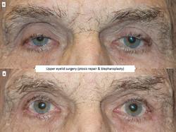 Upper eyelid surgery (ptosis repair & blepharoplasty) 4