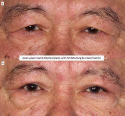 Asian upper eyelid blepharoplasty with fat debulking & crease fixation 2